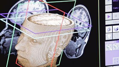 Das Rätsel des künstlichen Hirns