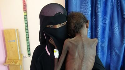 Jemen: Hunger als Kriegswaffe