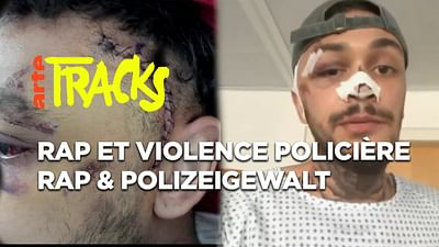 Rap und Polizeigewalt    |    TRACKS