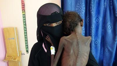 Yémen : la faim comme arme de guerre