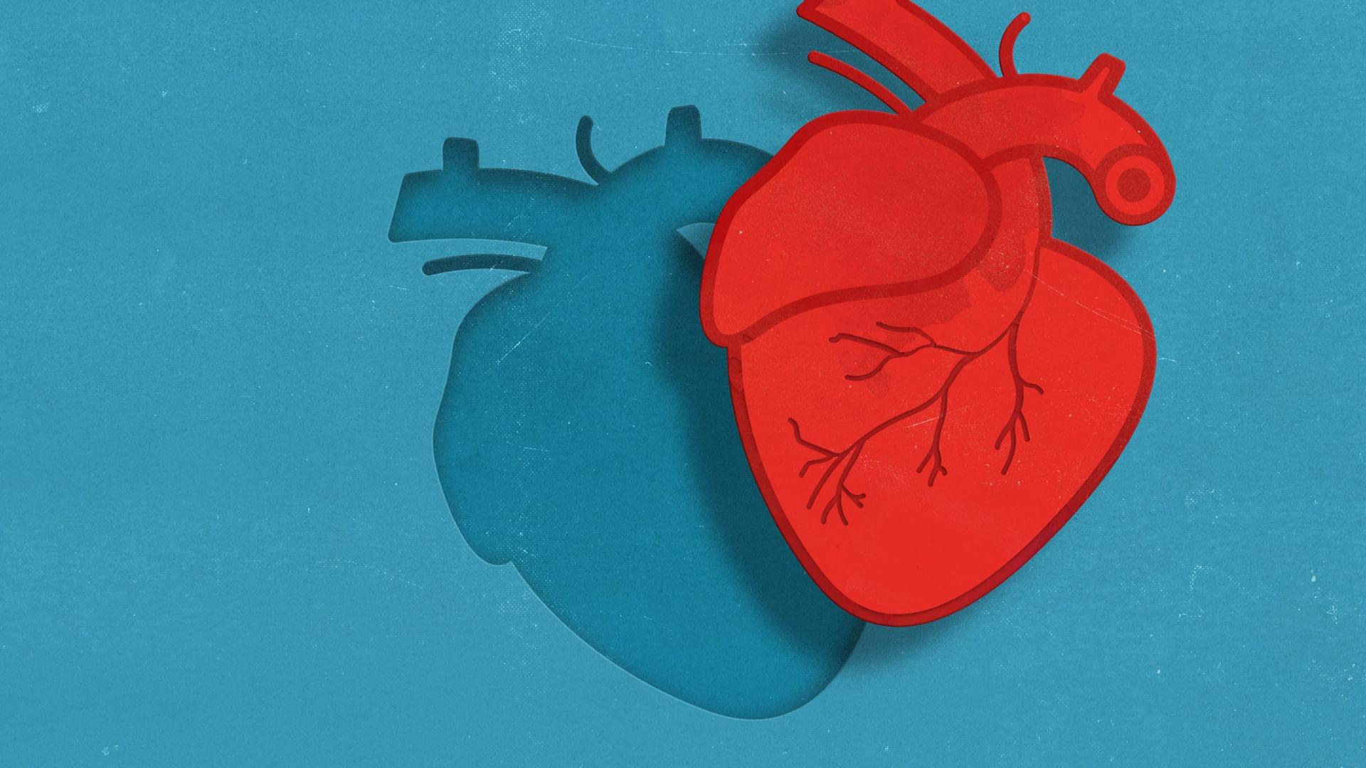 Don d'organes : comment pallier le manque ?